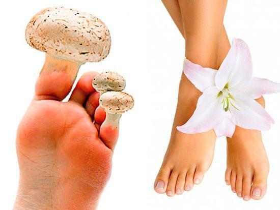 Vaikų pėdų onchomikozė